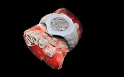 UC Connect public lecture on revolutionary 3D colour X-ray for medicine