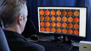 NZ AI can predict retinal and eye diseases